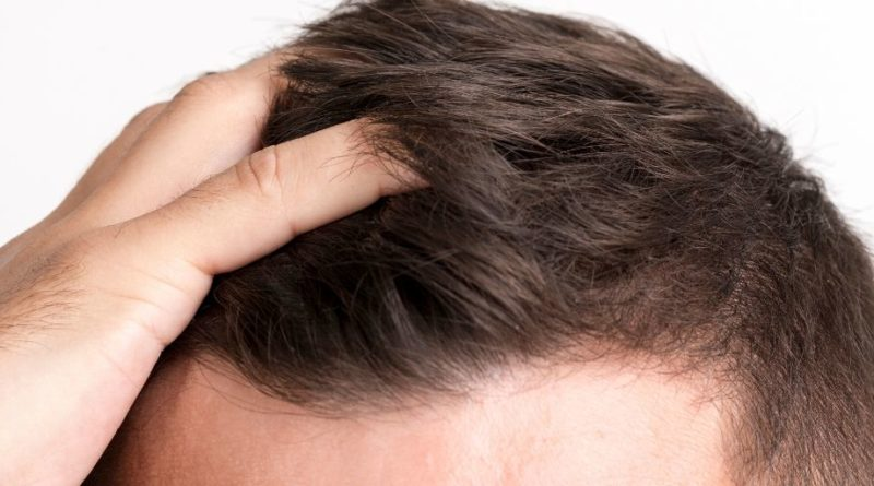 Hair Loss Causes, Symptoms and Treatment!
